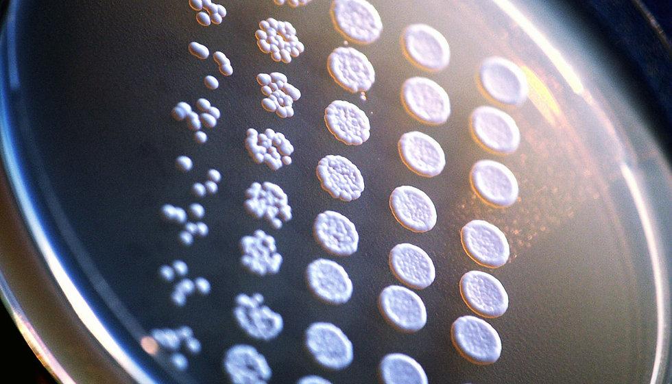 Saccharomyces_cerevisiae_1170.jpg