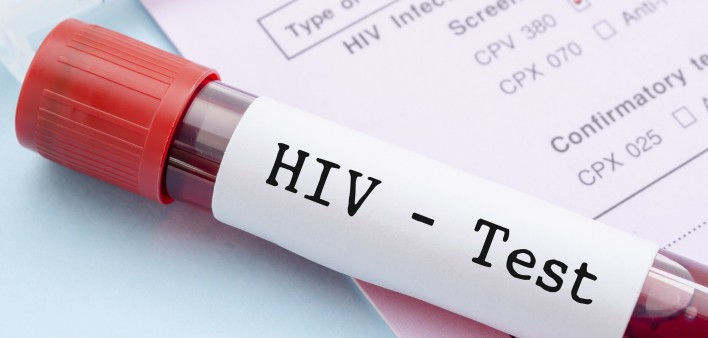 Anonymous HIV Test