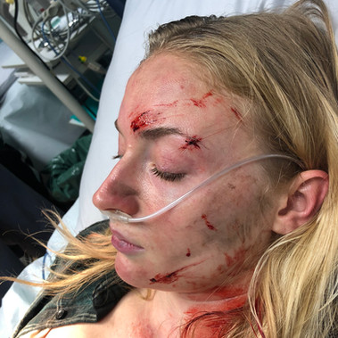Survive - TV Series • Head of Makeup, Prosthetics