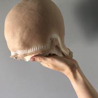 headprosthetic_ida_astero_welle.HEIC