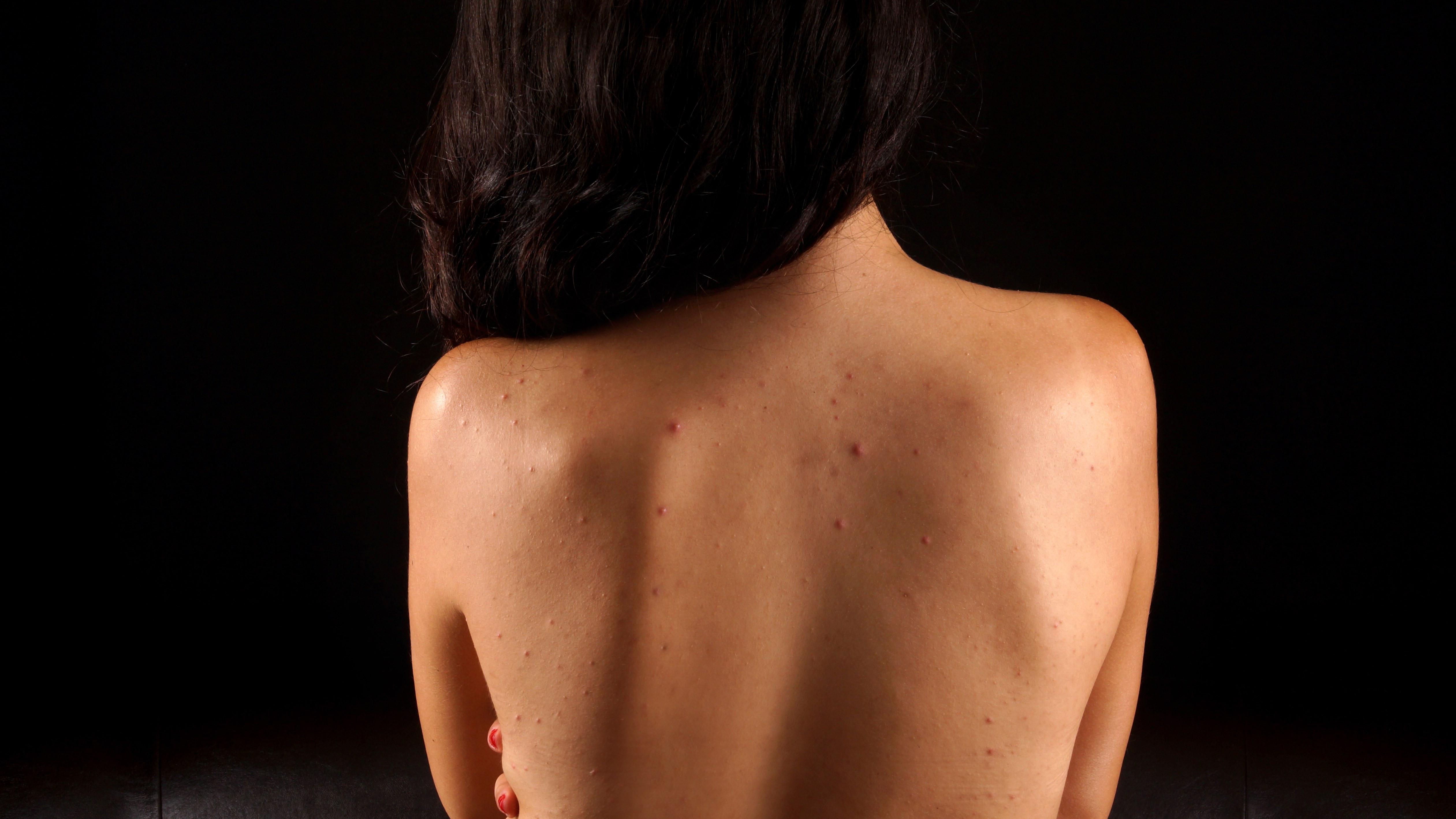 Anti-Acne Back Facial