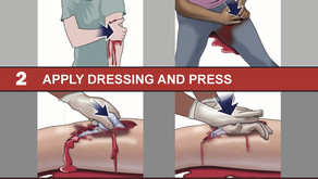 Stop the Bleed: Save a Life