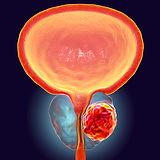 photo_cancer-de-prostata.jpg