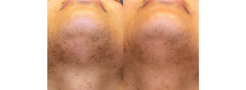 laserRemoval_before&After3.png