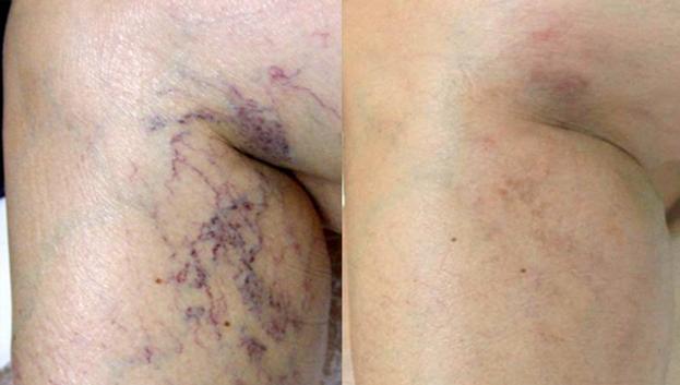 SpiderVeinsRemoval_Before&After.png