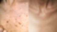 SkinRenewal_Before&After1.png
