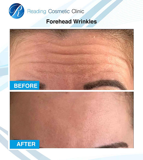 before and after-foreheadwrinkles2.jpg