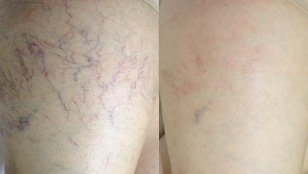 SpiderVeinsRemoval_Before&After3.png