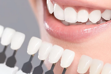Teeth Whitening Guelph