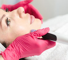 Needle mesotherapy.jpg Microneedle meso