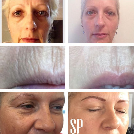 Collagen Induction Therapy Results Perth