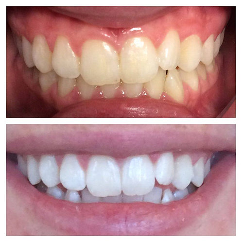 1 x Teeth Whitening 30 minutes