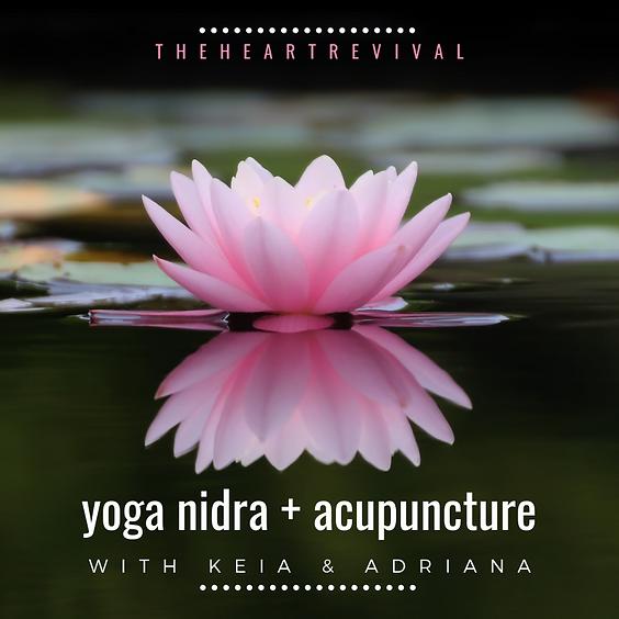 Yoga Nidra + Acupuncture