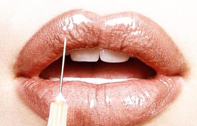 Luscious Lips -  Faer Talk on Lip Filler