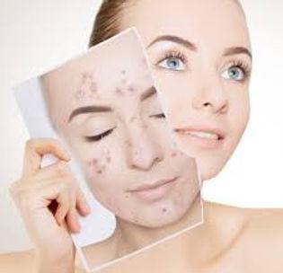 acne facial.jpg