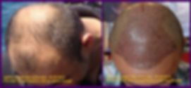 standard FUE hair transplantation with microblades