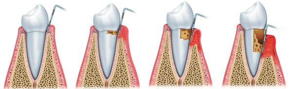 doença periodontal, periodontia