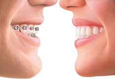 ortodontia, aparelho