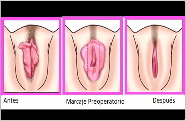 rejuvenecimiento vaginal 3.png