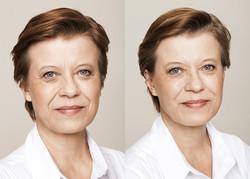 chatswood botox plastic surgeon