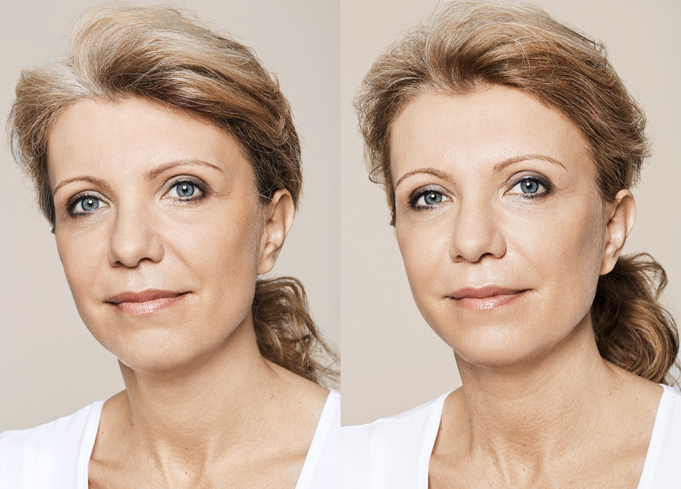 chatswood|dermal fillers|cheeks
