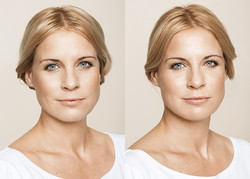 chatswood cosmetic  wrinkle clinic
