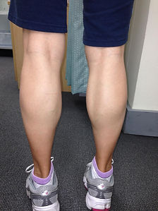 Calf reduction|chatswood|cosmetic|clinic
