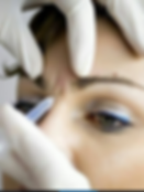 chatswood|botox|frown lines|glabella|eye brows|brow lift