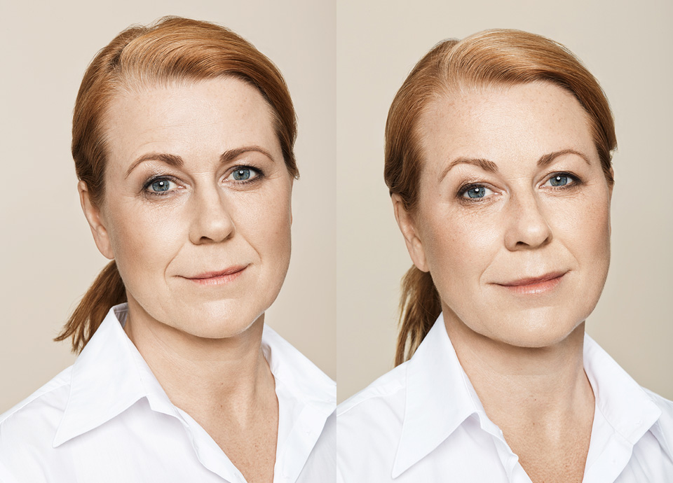 chatswood|botox|plastic surgeon