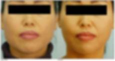Jawline Slimming botox in masseters face slimming