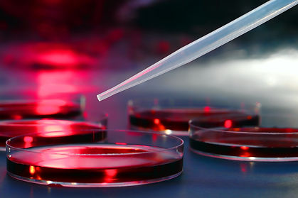 shutterstock petri dish.jpg