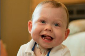 smiling baby with tracheotomy at home
