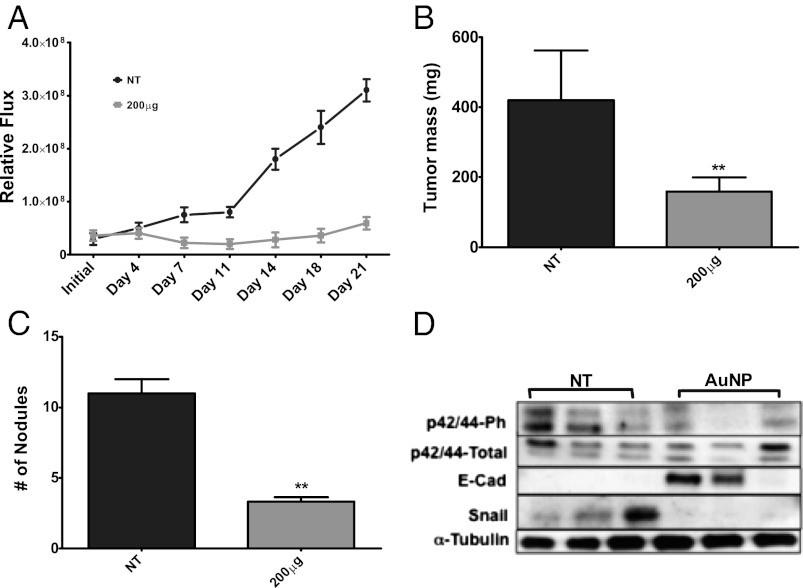 El tratamiento con AuNP inhibe la metástasis tumoral al revertir la plasticidad epitelial en un modelo de cáncer de ovario
