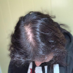 Before Edge Scalp Ink SMP