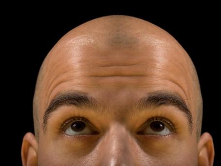 What Is Scalp Micropigmentation in Washington DC?