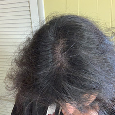 After Edge Scalp Ink SMP