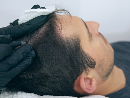 Why Scalp Micropigmentation Is the Best Hair Loss Treatment for Bald Men in Washington DC
