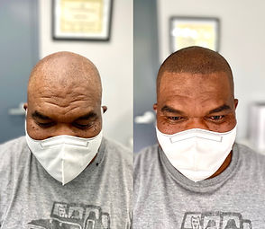 Male Pattern Baldness | Edge Scalp Ink | Scalp Micropigmentation | SMP