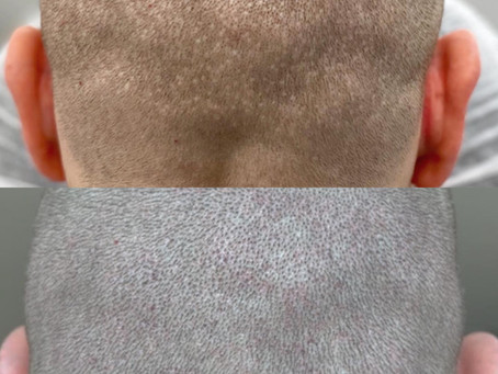 Finding the Best Scalp Micropigmentation in Rockville, Maryland
