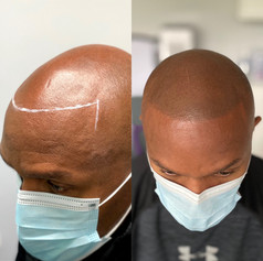 SMP Treatment Semi-Soft Hairline