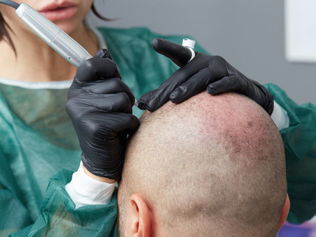 Covering Scars with Scalp Micropigmentation