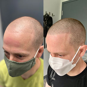 Scalp Micropigmentation | SMP | Male Pattern Baldness | Hair Tattoo| Edge Scalp Ink