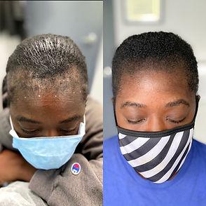 Scalp Micropigmentation | SMP | Women's Scalp Micropignmentation | Hair Tattoo| Edge Scalp Ink