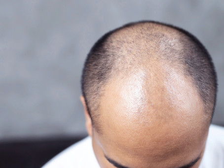 Where to Go for the Best Scalp Micropigmentation in the DMV