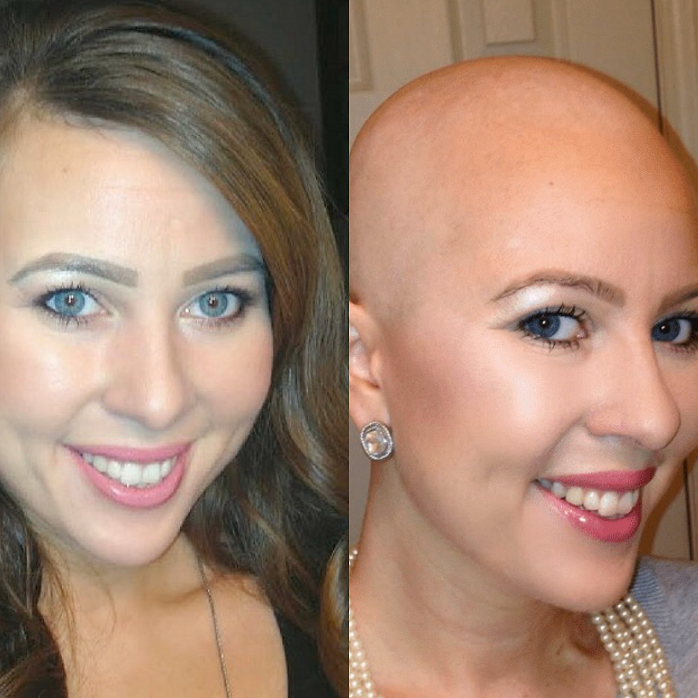 Image showing Anna's hair pre and post chemotherapy treatment