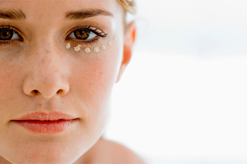 Eye Ultherapy treatment