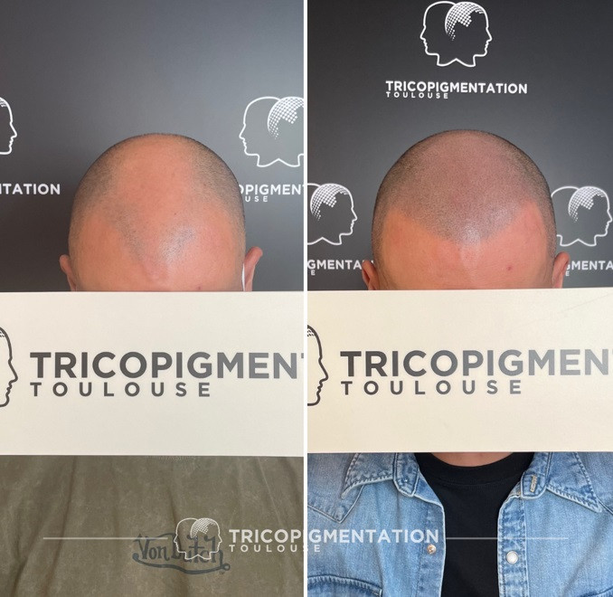 centre Tricopigmentation Toulouse