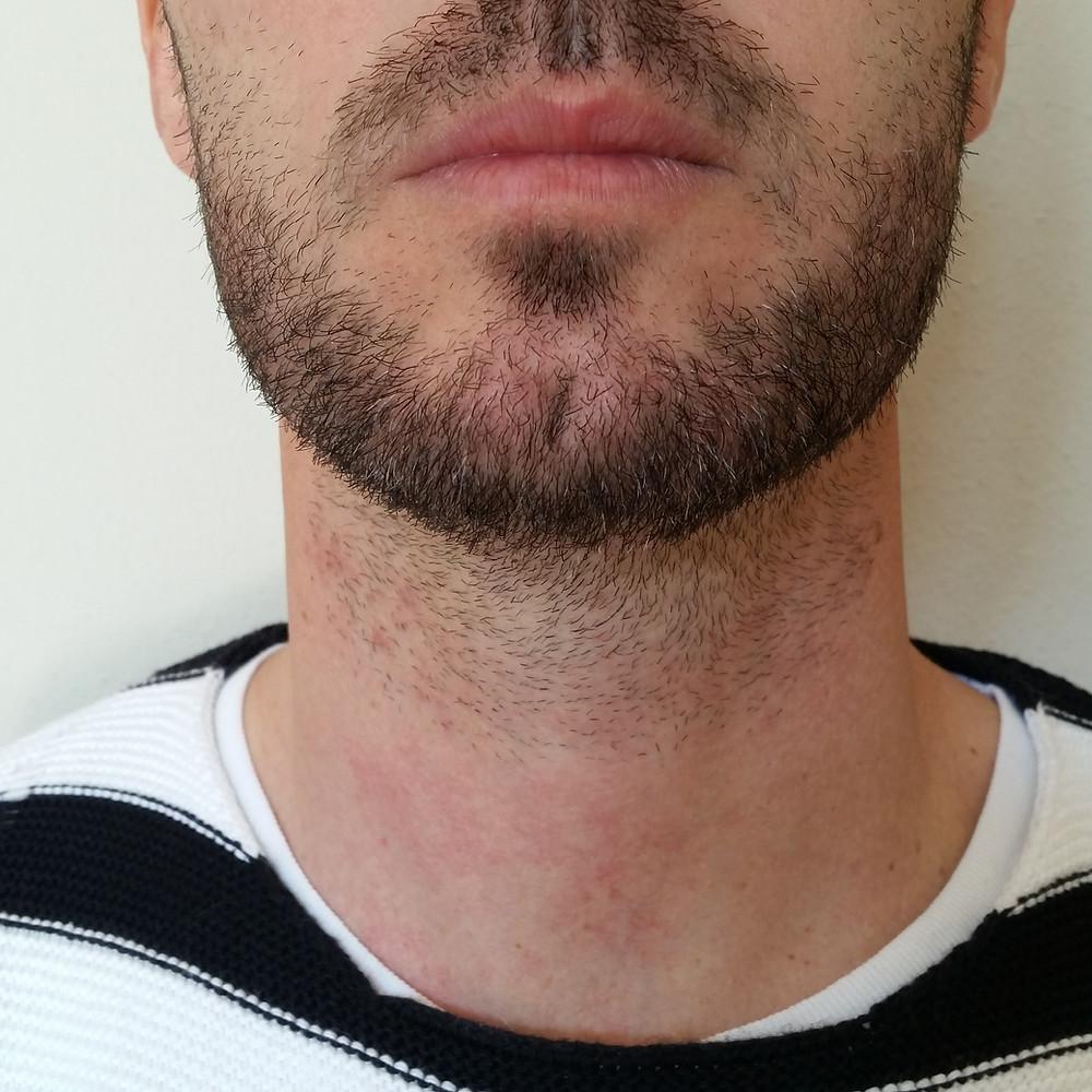 après pose coloration pour barbe