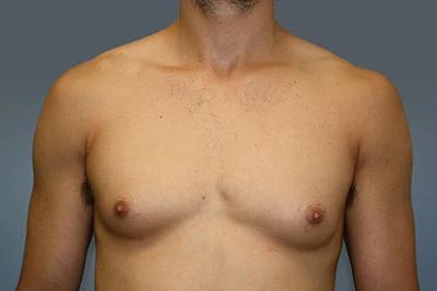 complexe homme gynécomastie