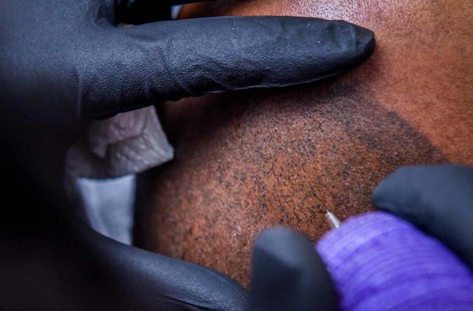 tricopigmentation ratée